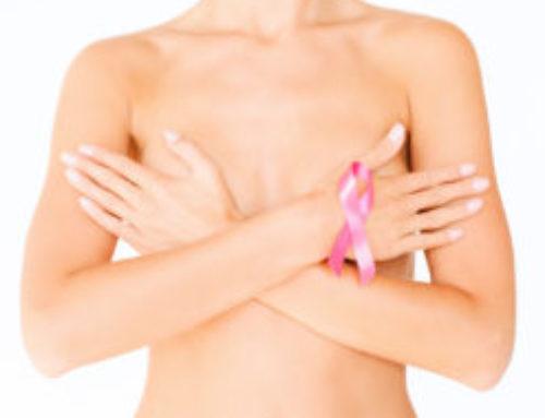 Lymfe/ borsten en kanker